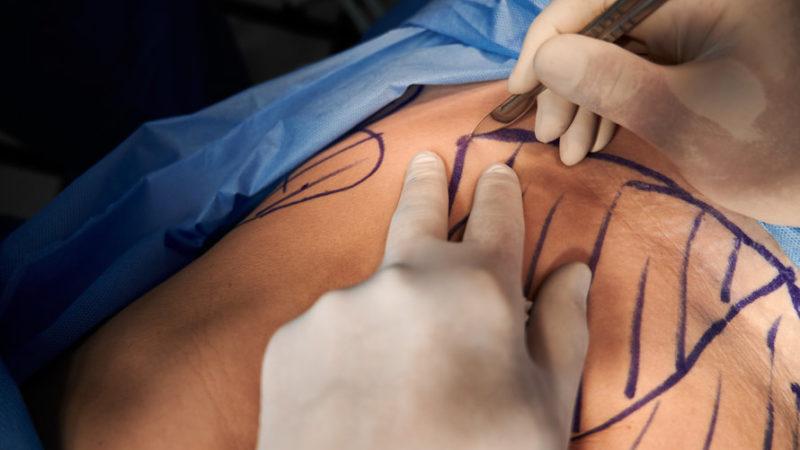 3 choses à savoir avant de planifier une chirurgie pour votre ventre